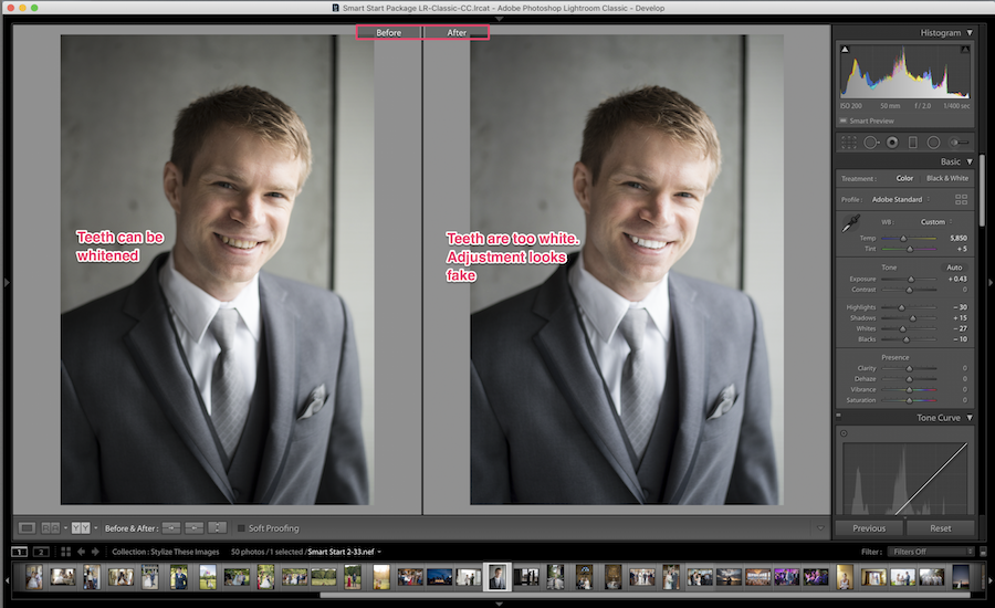 teeth whitening gone wrong in lightroom